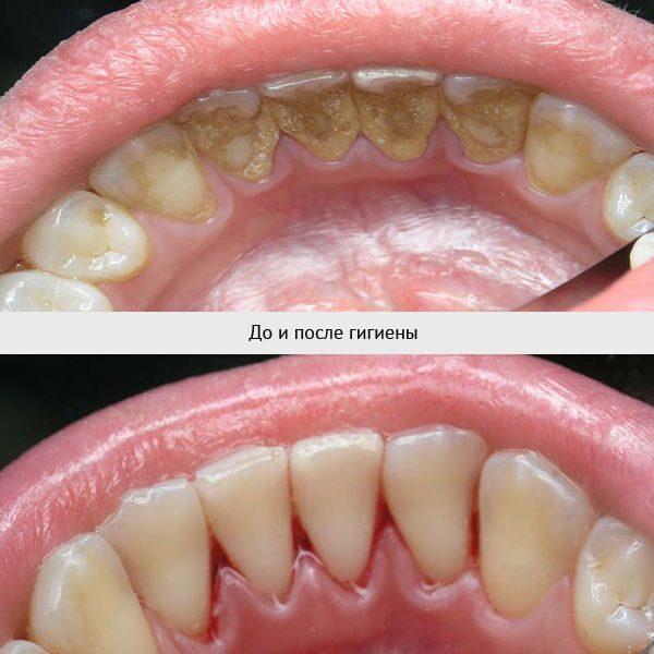 Рак полости рта: причины, симптомы, когда